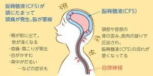 「脳脊髄液 循環 一時呼吸 絵 図」の画像検索結果